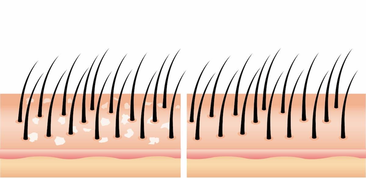 perte de cheveux pellicules