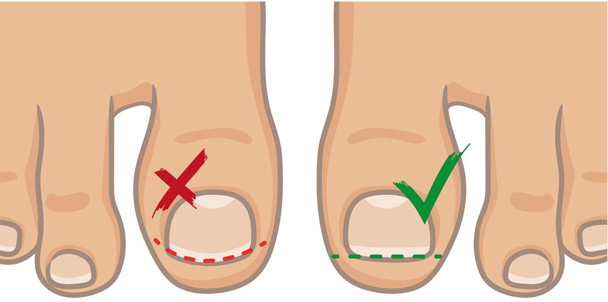 bien couper ses ongles de pieds