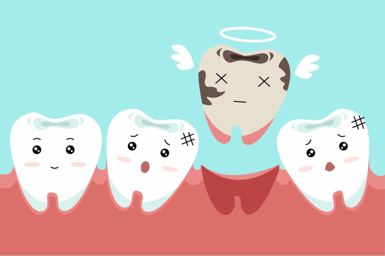 Panorama sur comment avoir de belles dents en pleine santé ?