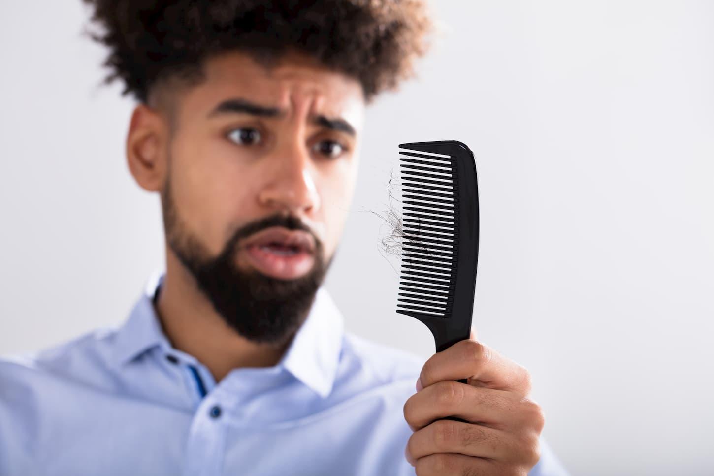 Panorama des solutions pour cacher une perte de cheveux afro