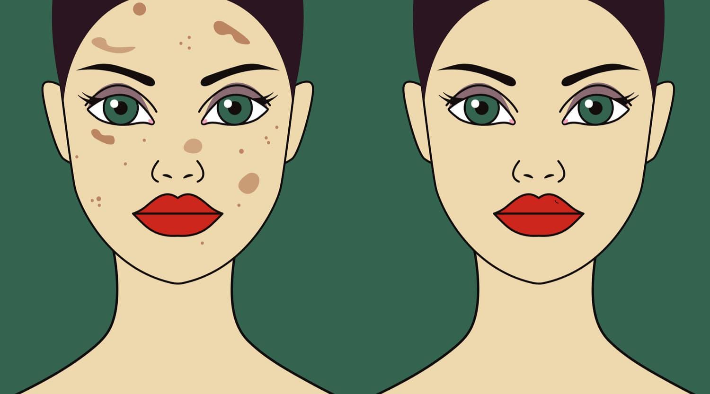 Taches sur les peaux noires, panorama des meilleurs traitements actuels