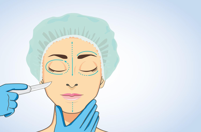 Panorama des solutions de chirurgie esthétique au visage